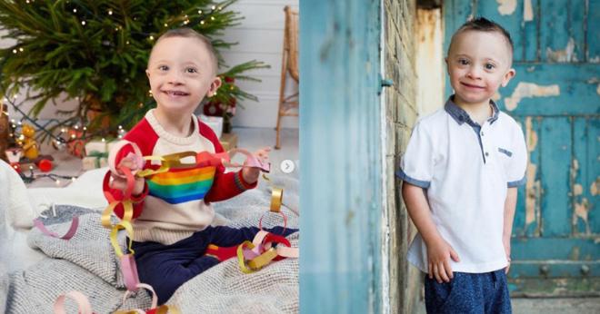 Ребенок с синдромом Дауна стал моделью. И он расплавил наши сердца