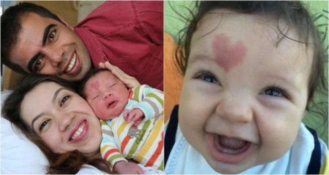 Малыш который родился с родимым пятном на лбу в виде сердца. Как он выглядит сейчас?