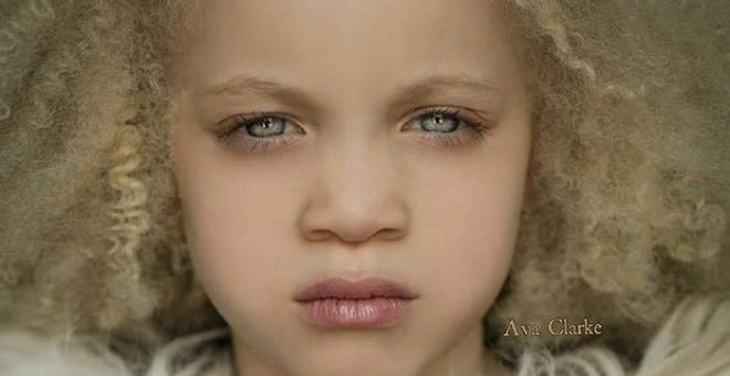 Девочка-альбинос смогла не только адаптироваться в жизни, но и стала востребованной моделью
